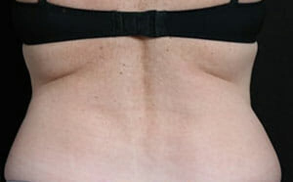 CoolSculpting® Gallery - Patient 9605716 - Image 2