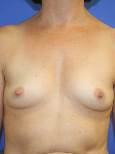 Breast Augmentation Gallery - Patient 9605732 - Image 1