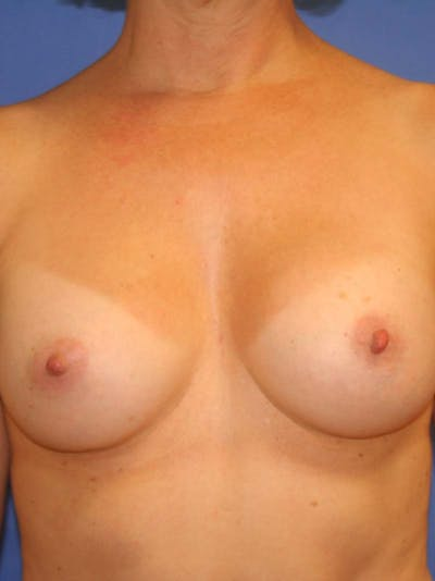 Breast Augmentation Gallery - Patient 9605732 - Image 2
