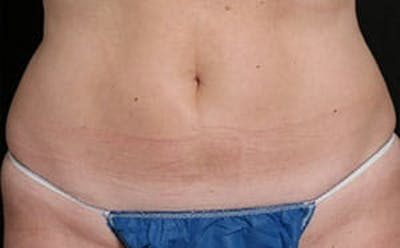 CoolSculpting® Gallery - Patient 9605731 - Image 2