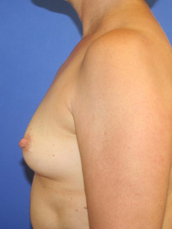 Breast Augmentation Gallery - Patient 9605732 - Image 3