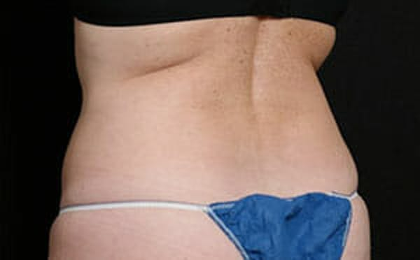 CoolSculpting® Gallery - Patient 9605731 - Image 4