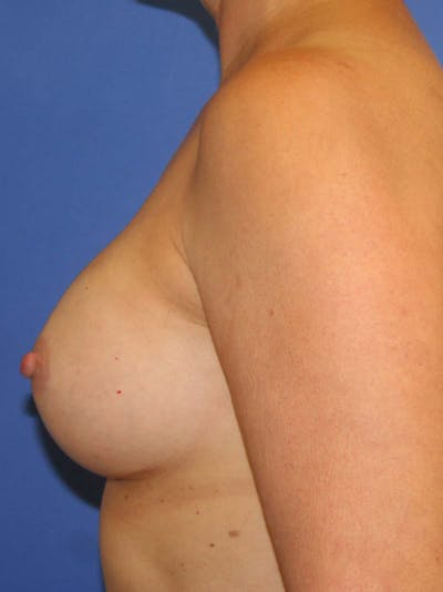 Breast Augmentation Gallery - Patient 9605732 - Image 4