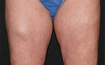 CoolSculpting® Gallery - Patient 9605733 - Image 1