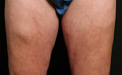 CoolSculpting® Gallery - Patient 9605733 - Image 2