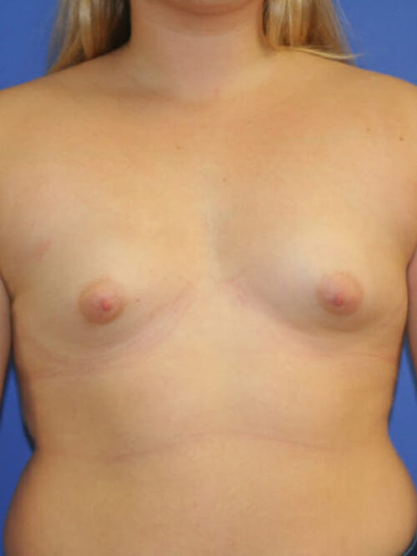 Breast Augmentation Gallery - Patient 9605744 - Image 1