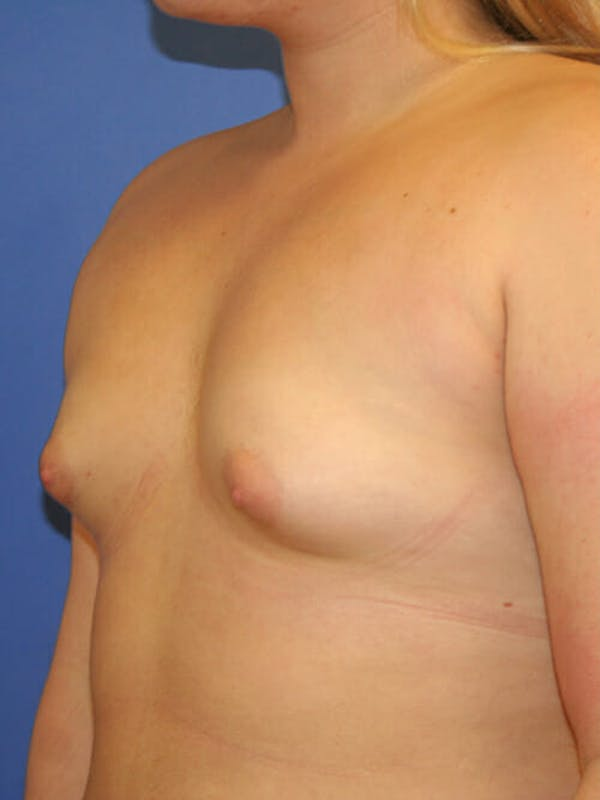 Breast Augmentation Gallery - Patient 9605744 - Image 3