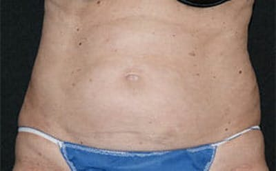 CoolSculpting® Gallery - Patient 9605741 - Image 1