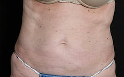 CoolSculpting® Gallery - Patient 9605741 - Image 2