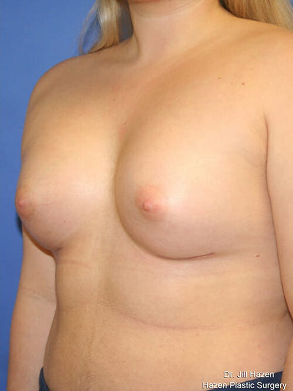 Breast Augmentation Gallery - Patient 9605744 - Image 4