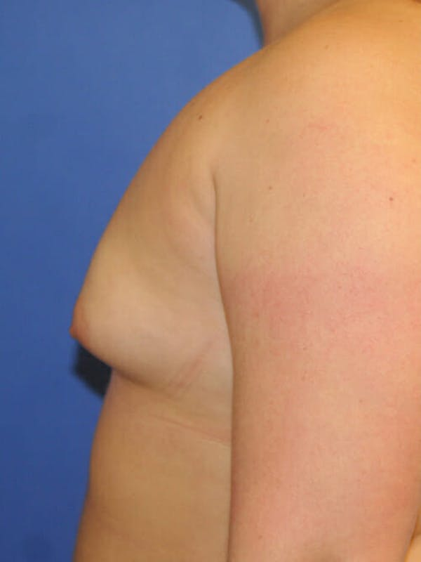 Breast Augmentation Gallery - Patient 9605744 - Image 5