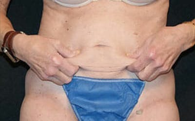 CoolSculpting® Gallery - Patient 9605741 - Image 4