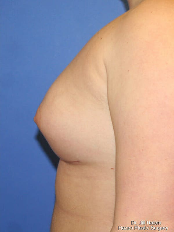 Breast Augmentation Gallery - Patient 9605744 - Image 6