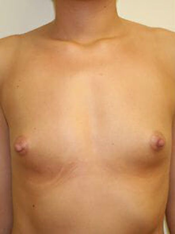 Breast Augmentation Gallery - Patient 9605747 - Image 1
