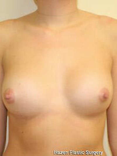 Breast Augmentation Gallery - Patient 9605747 - Image 2