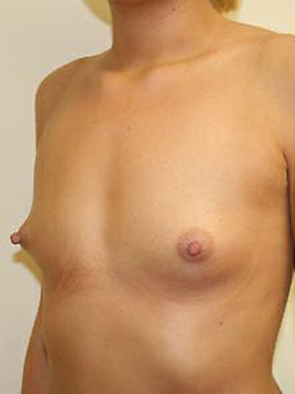 Breast Augmentation Gallery - Patient 9605747 - Image 3