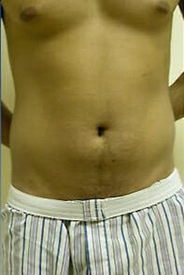 Male Liposuction Gallery - Patient 9605748 - Image 1