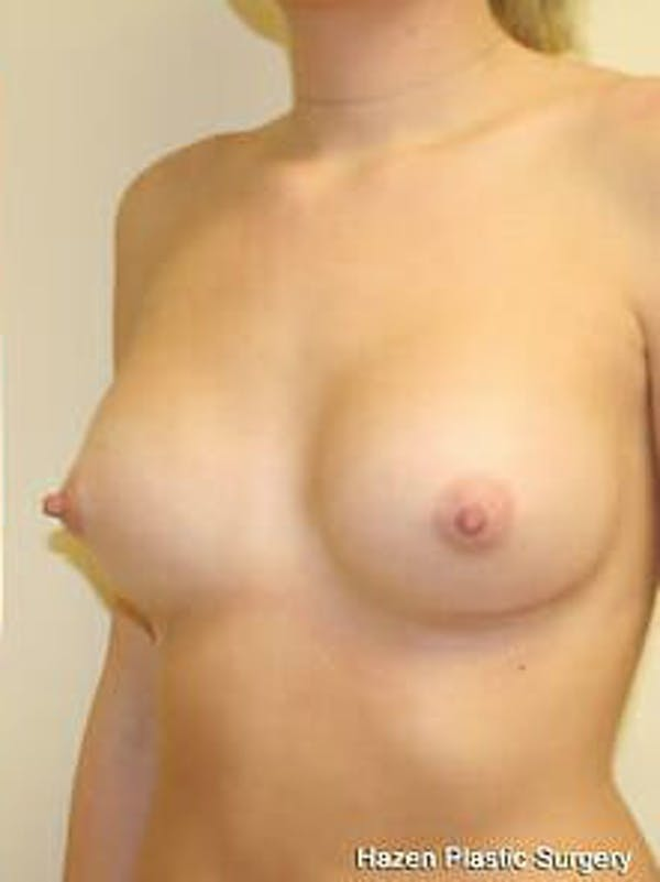 Breast Augmentation Gallery - Patient 9605747 - Image 4