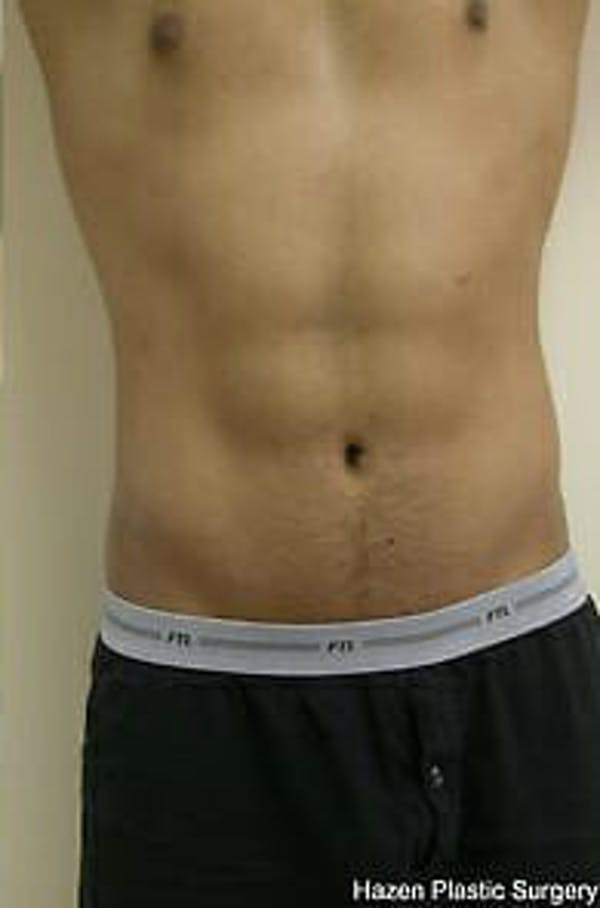 Male Liposuction Gallery - Patient 9605748 - Image 2