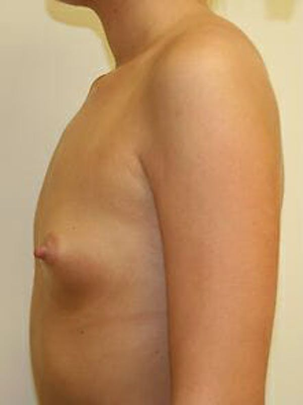 Breast Augmentation Gallery - Patient 9605747 - Image 5