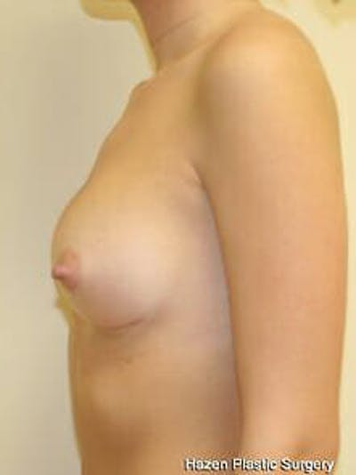 Breast Augmentation Gallery - Patient 9605747 - Image 6