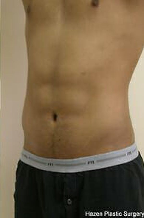 Male Liposuction Gallery - Patient 9605748 - Image 4