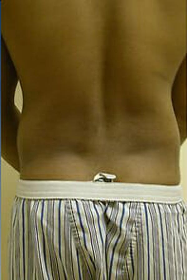 Male Liposuction Gallery - Patient 9605748 - Image 5