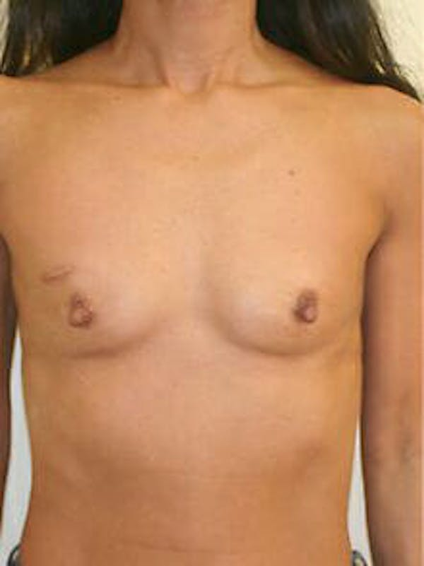 Breast Augmentation Gallery - Patient 9605750 - Image 1