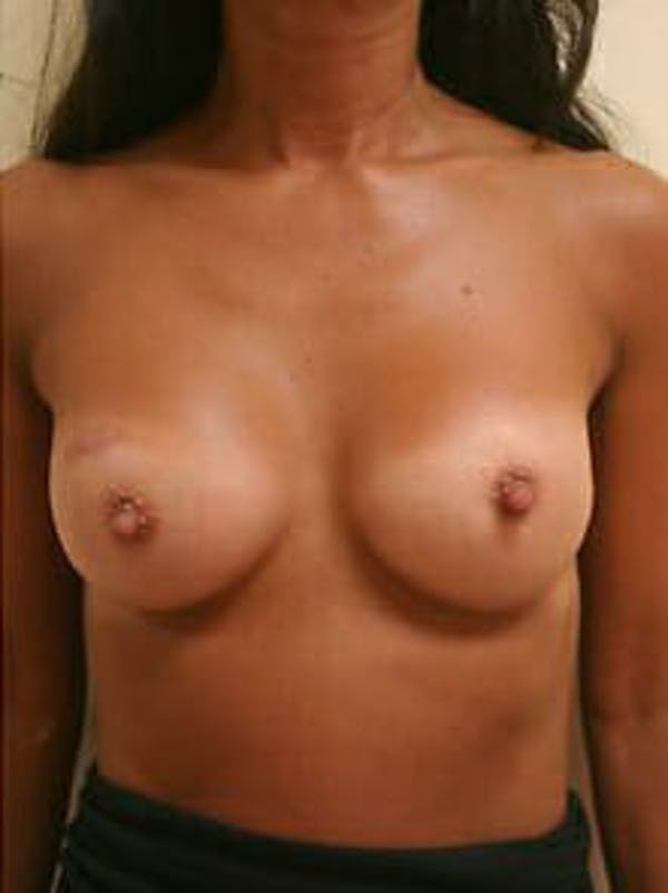Breast Augmentation Gallery - Patient 9605750 - Image 2