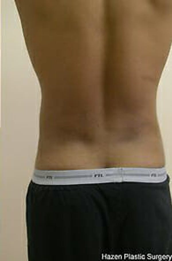 Male Liposuction Gallery - Patient 9605748 - Image 6