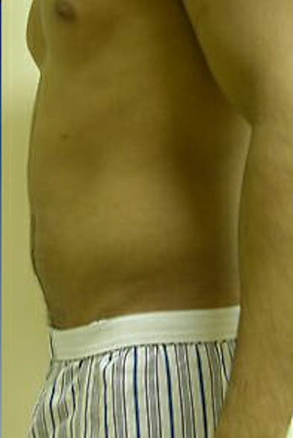 Male Liposuction Gallery - Patient 9605748 - Image 7