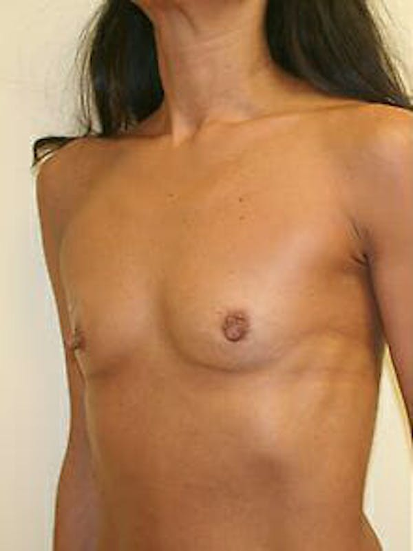 Breast Augmentation Gallery - Patient 9605750 - Image 3