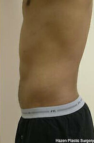 Male Liposuction Gallery - Patient 9605748 - Image 8