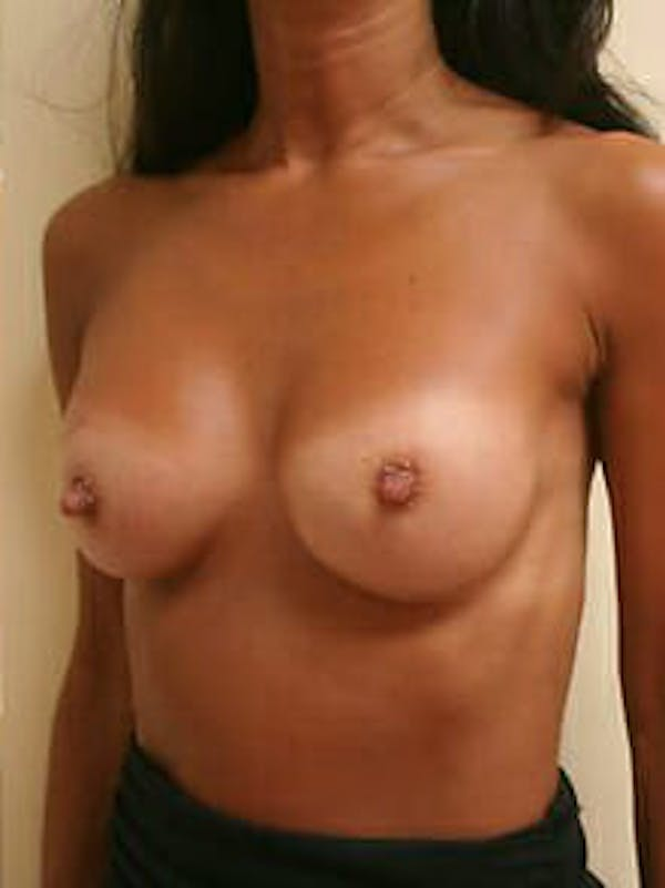 Breast Augmentation Gallery - Patient 9605750 - Image 4