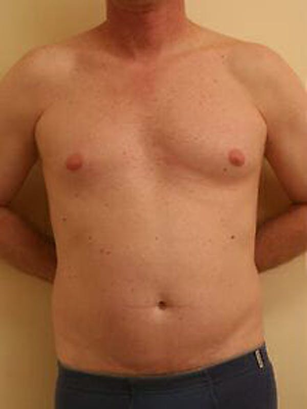 Male Liposuction Gallery - Patient 9605757 - Image 1