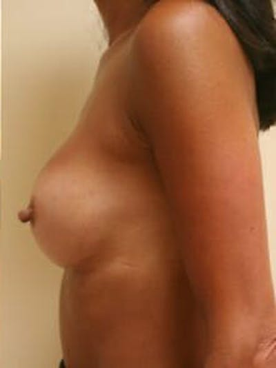 Breast Augmentation Gallery - Patient 9605750 - Image 6