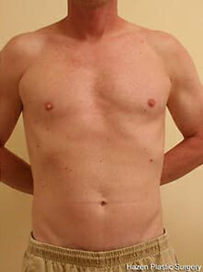 Male Liposuction Gallery - Patient 9605757 - Image 2