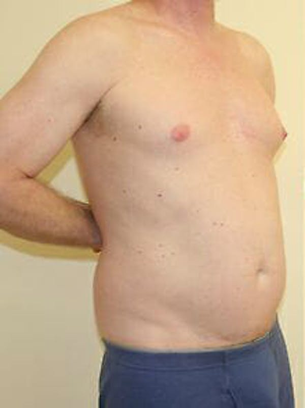 Male Liposuction Gallery - Patient 9605757 - Image 3