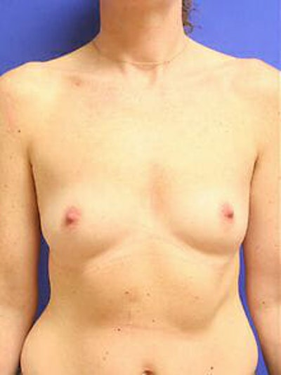 Breast Augmentation Gallery - Patient 9605756 - Image 1