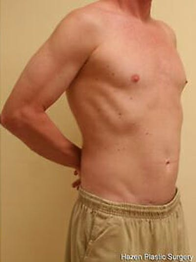 Male Liposuction Gallery - Patient 9605757 - Image 4