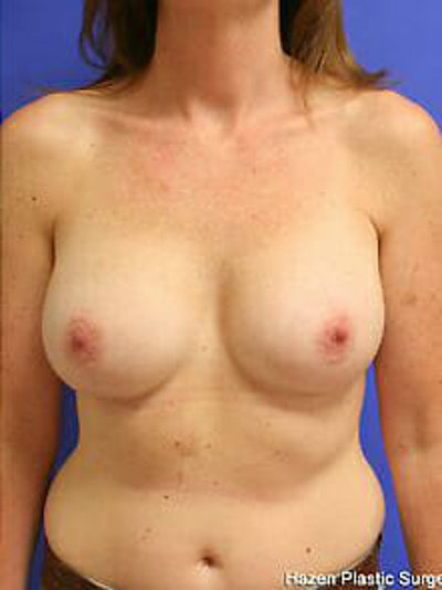 Breast Augmentation Gallery - Patient 9605756 - Image 2