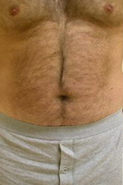 Male Liposuction Gallery - Patient 9605760 - Image 1