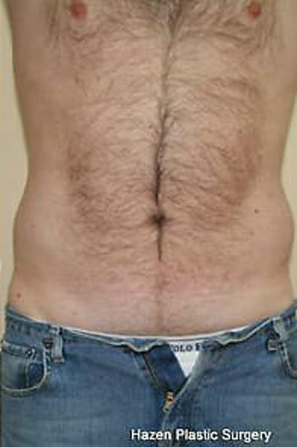 Male Liposuction Gallery - Patient 9605760 - Image 2