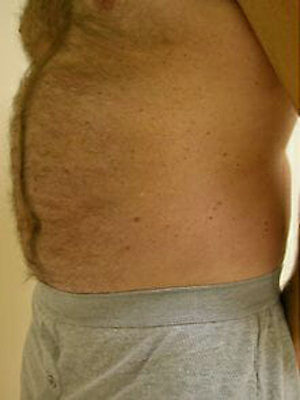 Male Liposuction Gallery - Patient 9605760 - Image 3