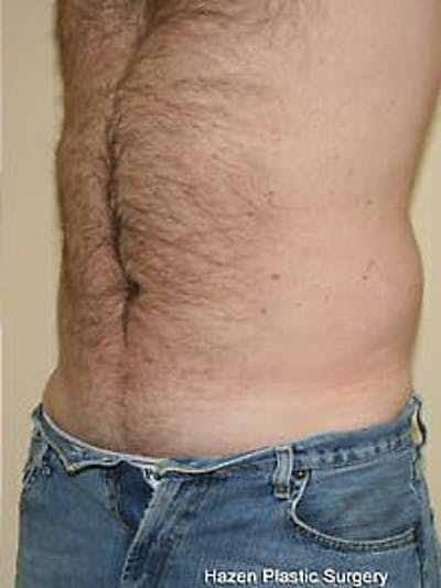 Male Liposuction Gallery - Patient 9605760 - Image 4