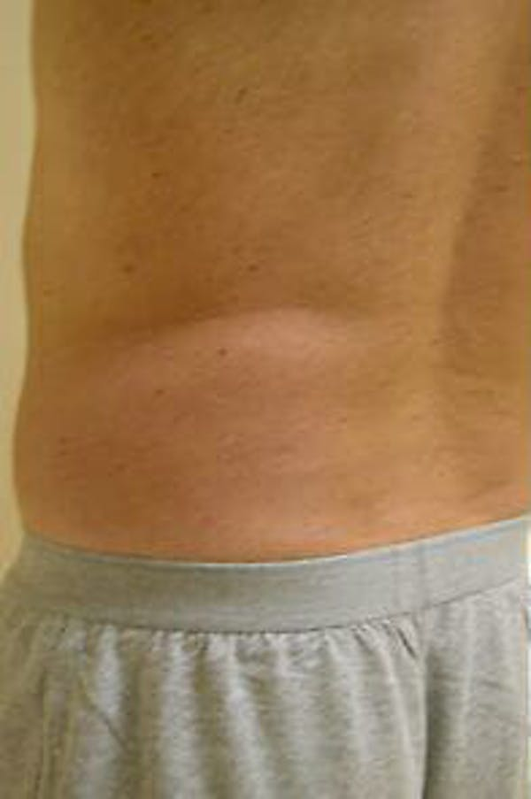 Male Liposuction Gallery - Patient 9605760 - Image 5