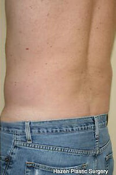 Male Liposuction Gallery - Patient 9605760 - Image 6