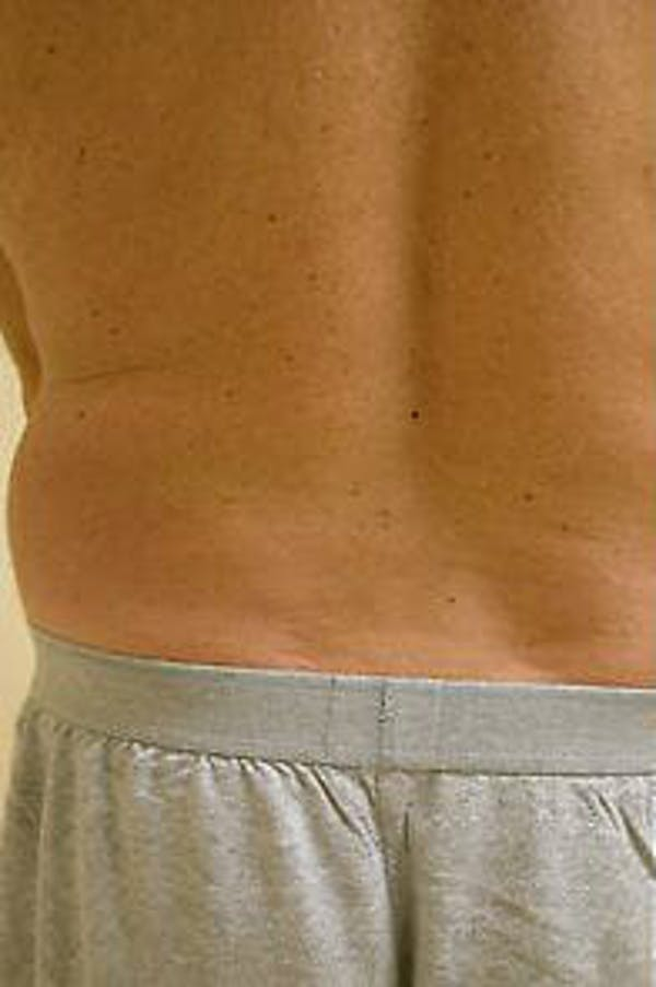 Male Liposuction Gallery - Patient 9605760 - Image 7