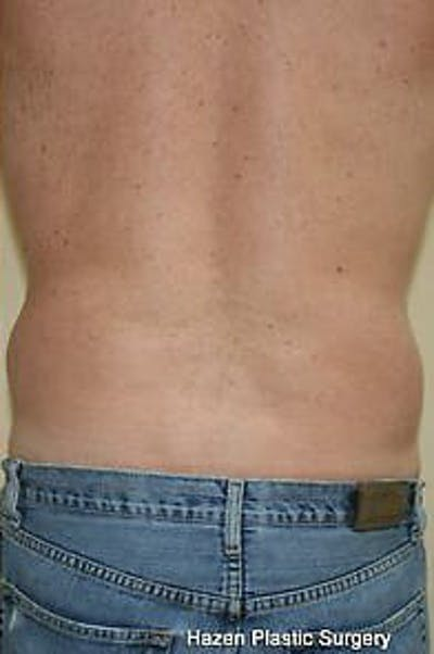 Male Liposuction Gallery - Patient 9605760 - Image 8