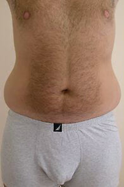 Male Liposuction Gallery - Patient 9605762 - Image 1